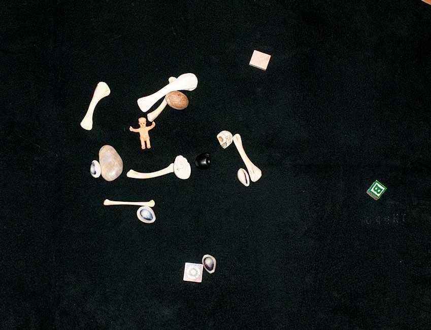 Bone Set by Anonymous
